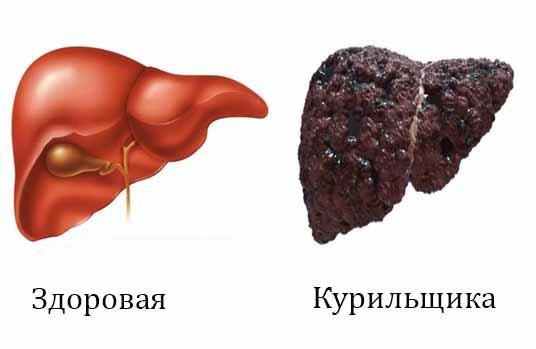Как курение влияет на печень? 61